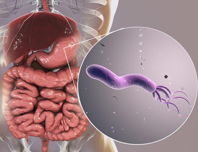 test oddechowy na helicobacter warszawa, badanie oddechowe na helicobacter pylori