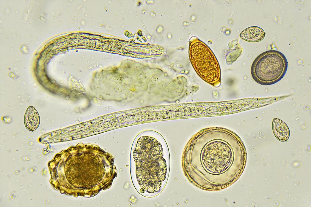 badania na obecność pasożytów warszawa