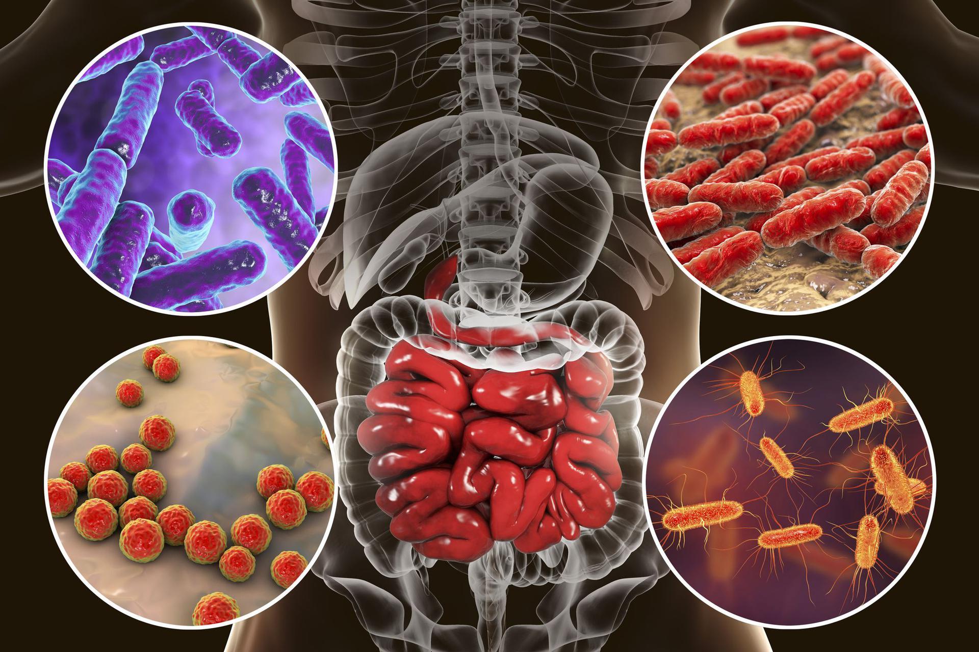 przerost bakterii w jelicie cienkim leczenie sibo